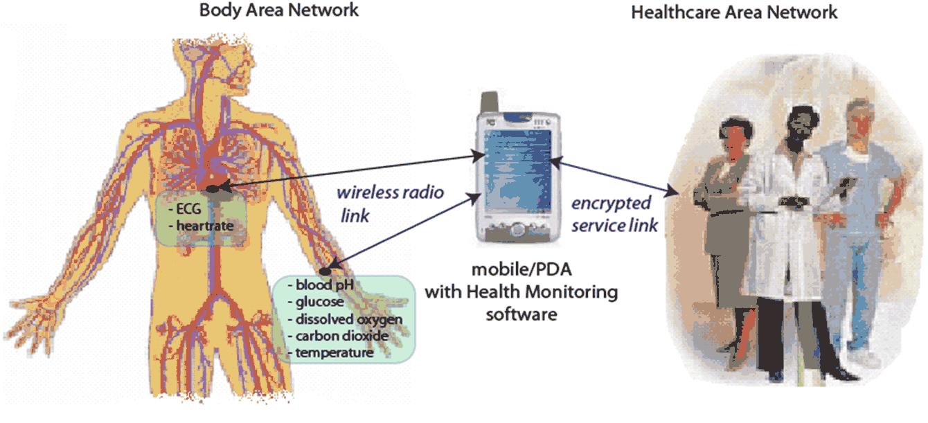 Sensium il cerotto senza fili per monitorare a distanza i pazienti